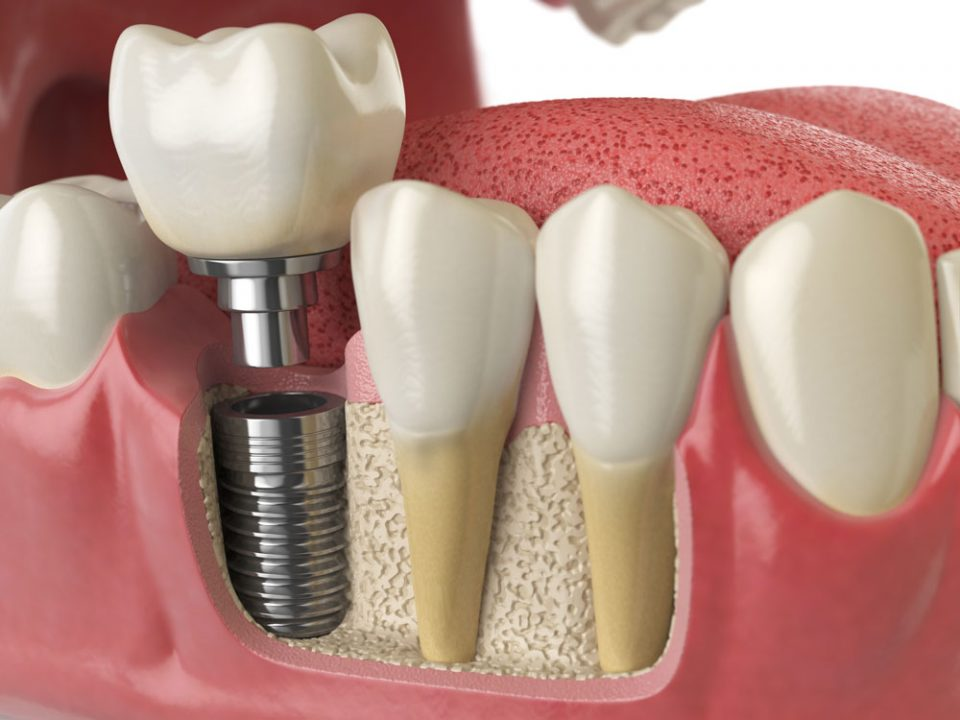 The-4-main-benefits-of-dental-implants